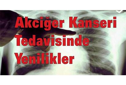 Akciğer Kanseri Tedavisindeki Yenilikler