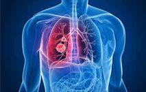 Akciğer Kanserinin Cerrahi Tedavisi