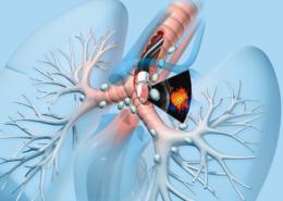 Göğüs Cerrahisinin artan önemi