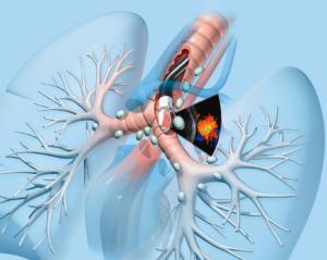 Akciğer kanserine dikkat